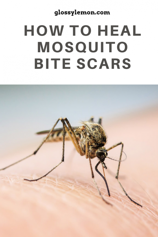 The secret to healing mosquito bite scars in no time!