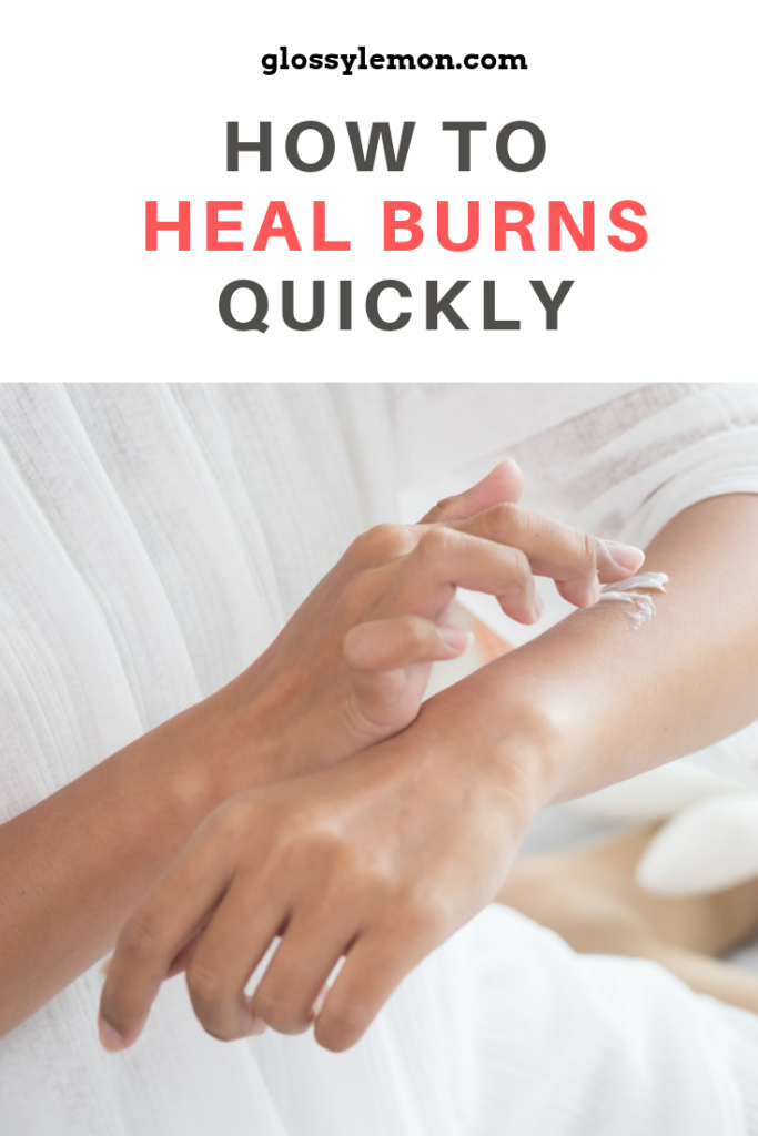 How to heal burns quickly