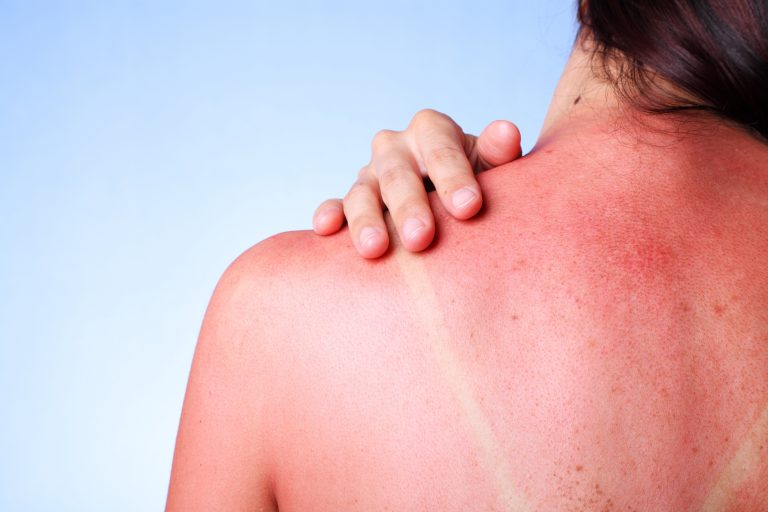 The Ultimate Guide – How to Treat Sunburn
