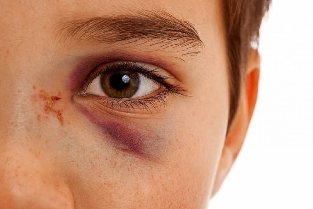 How to heal a black eye